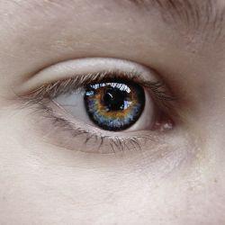 A lézeres szemműtét és az asztigmia
